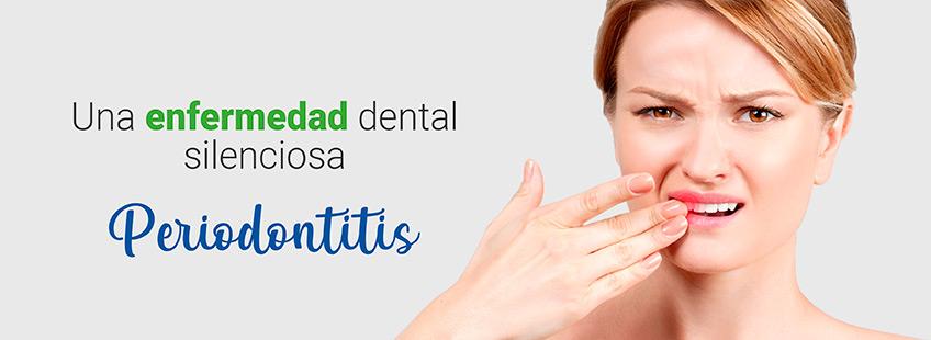 """""""Periodontitis"""". Una enfermedad dental silenciosa"""